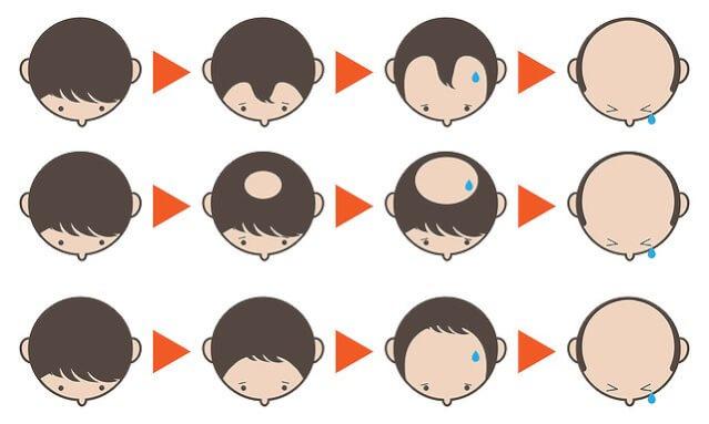 発毛と育毛のメカニズム