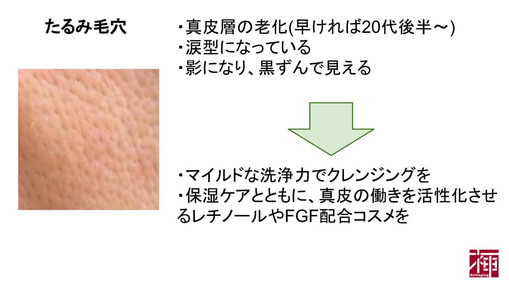 たるみ/帯状毛穴