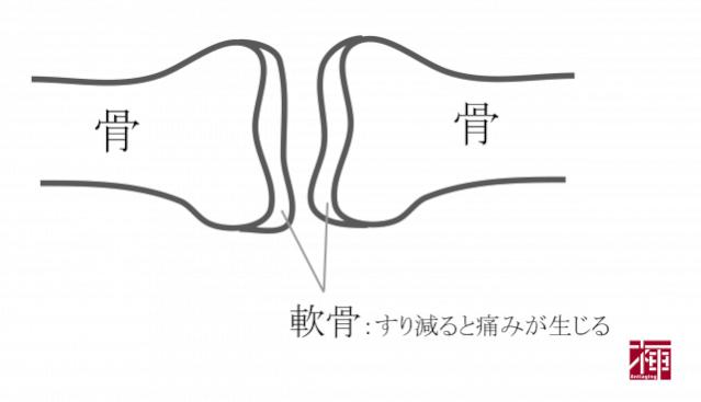 プロテオグリカン 軟骨
