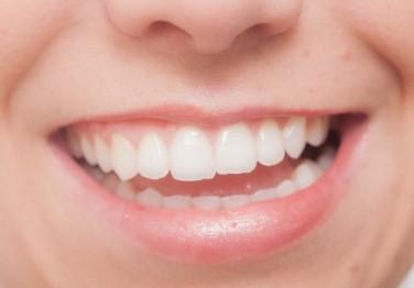 歯を白くする方法 自宅 ホワイトニング