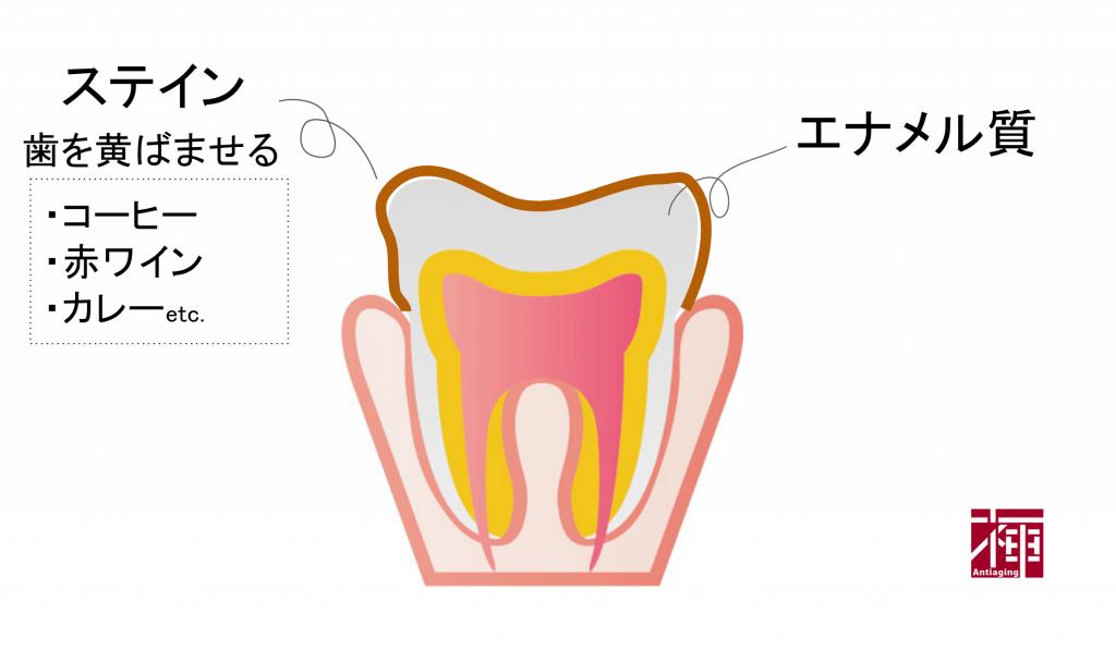 歯を白くする方法 ステイン