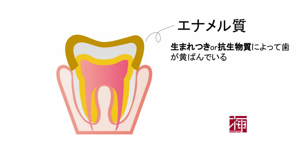歯を白くする方法 黄ばむ原因