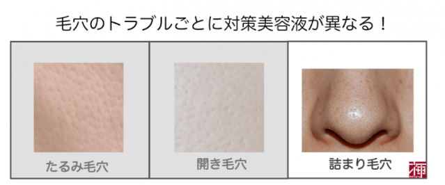 tsumari