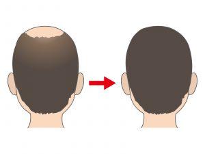 ヘッドスパ 育毛効果