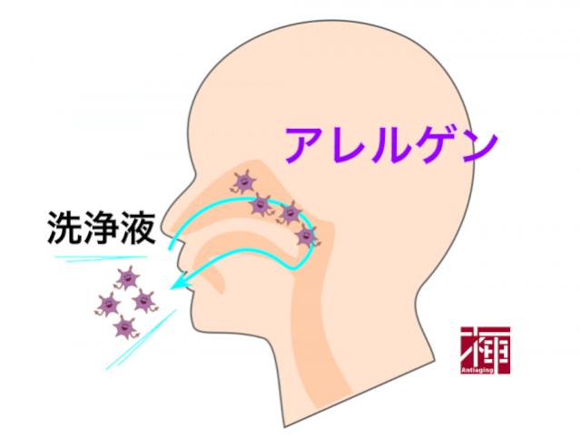 鼻うがい 慢性鼻炎