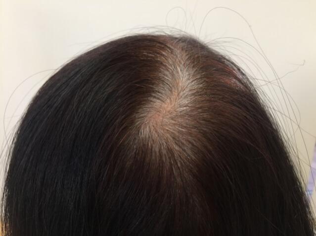 女性 頭頂部