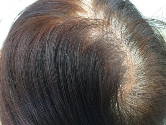 女性 脱毛症