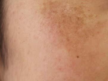 肝斑 トラネキサム酸化粧品