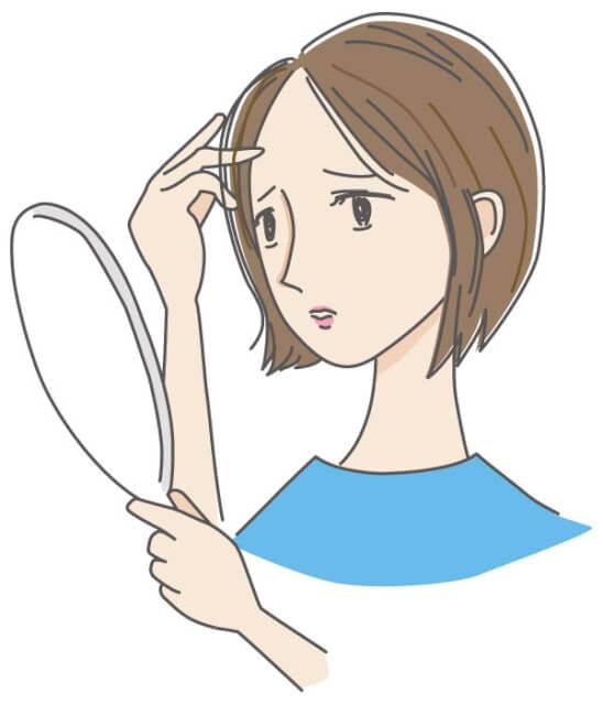 女性 薄毛 分け目