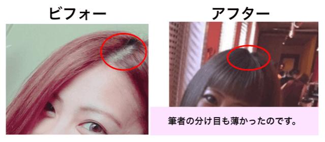 頭皮 薄毛