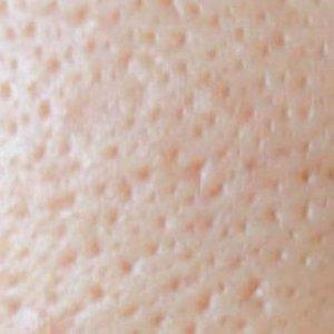肌でこぼこ 毛穴に開き