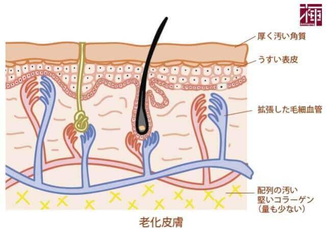 皮膚老化の要因