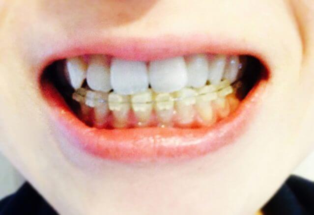 歯並び 悪い 歯列矯正