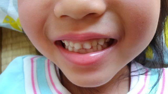 子ども 歯並び 悪い 歯列矯正