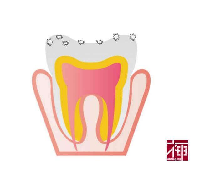研磨剤 歯磨き粉 デメリット