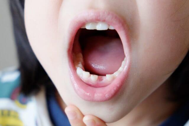 赤ちゃん 虫歯 感染の窓
