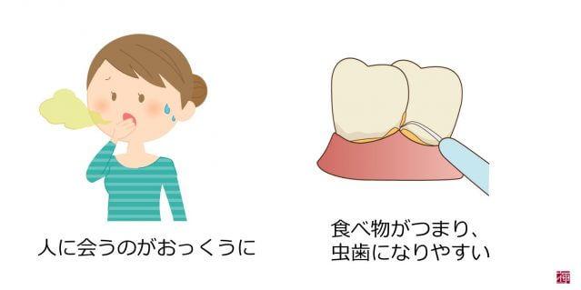 歯並び 悪い 原因