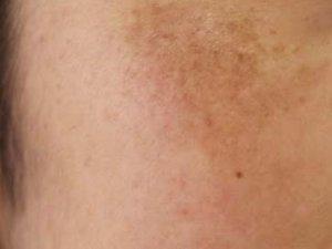 肝斑と美白美容液