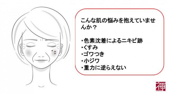 レチノール配合化粧品