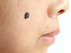 脂漏性角化症と美白化粧品