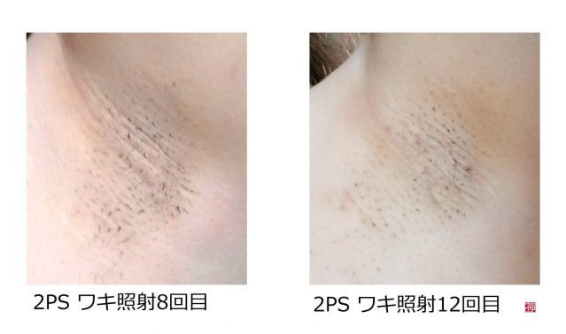 2PS_ワキ脱毛