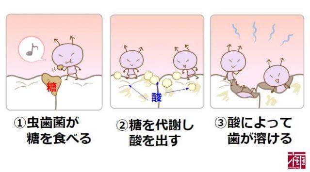 ミュータンス菌 歯垢 予防歯科