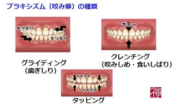 歯ぎしり 対策 ストレス