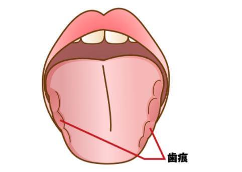 歯ぎしり 対策 顎関節症