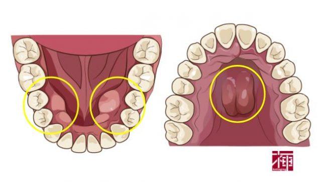 歯ぎしり 対策 マウスピース 歯医者