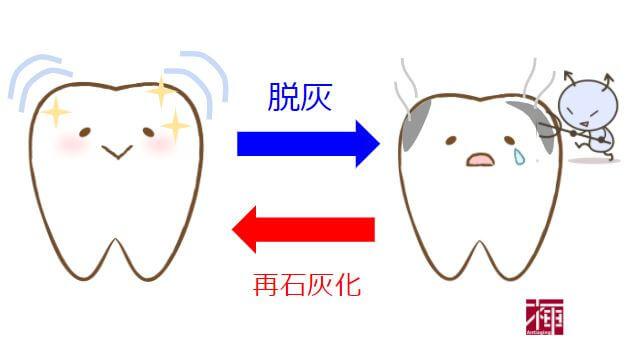 歯科衛生士 糖アルコール ミュータンス菌