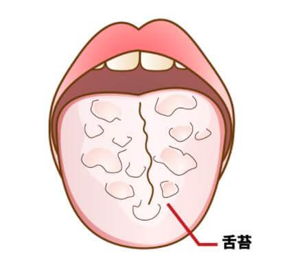 舌が白い 原因