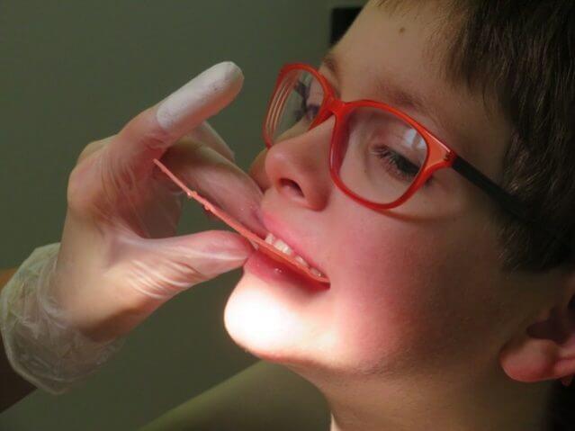 歯科治療 治療費 顎