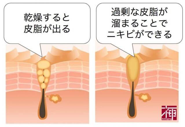 乾燥肌ニキビ