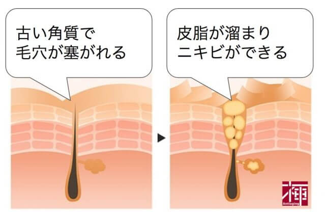 乾燥肌 ニキビ