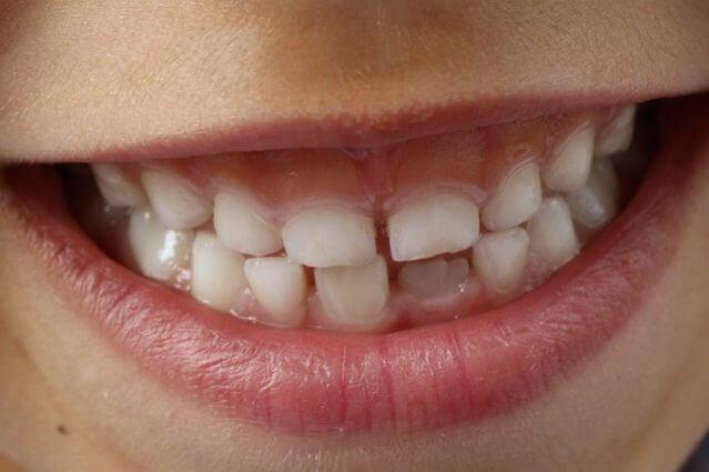歯科治療 治療費 歯列