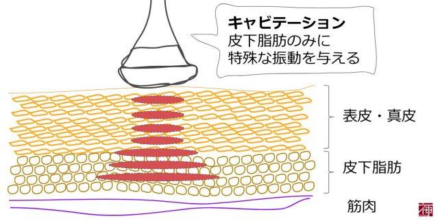 キャビテーションエステ 原理 脂肪細胞