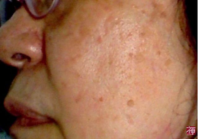 シミ 肝斑 トラネキサム酸化粧品