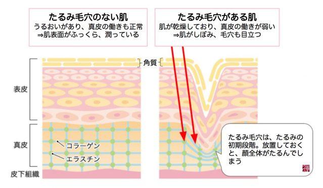 30代 毛穴 つまり たるみ 開き 乾燥
