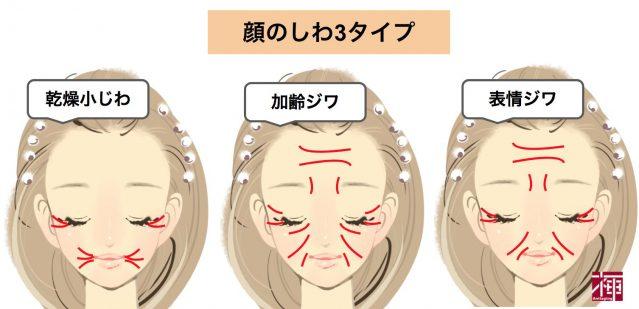 顔のしわ3タイプ シワ伸ばし