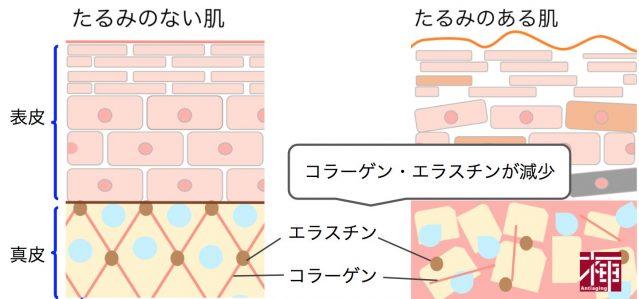 顔のたるみをとる方法 コラーゲン量