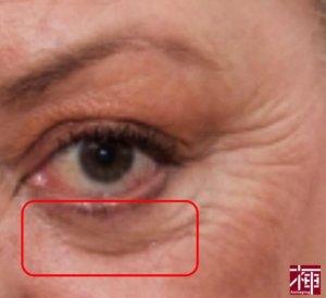 目の下のしわ に効く化粧品 種類