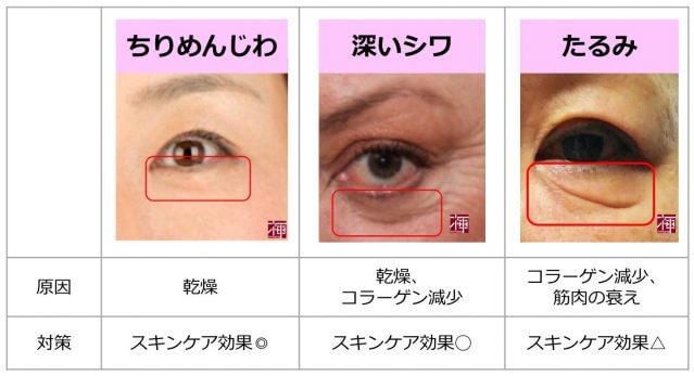 目の下のしわ 種類 化粧品